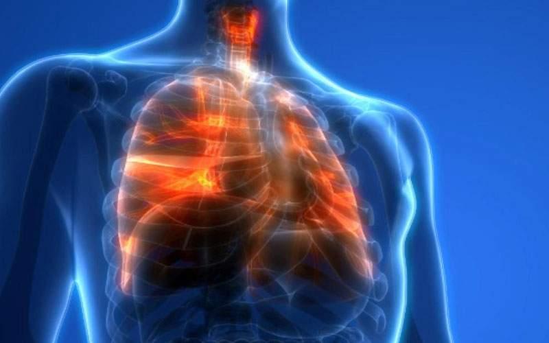 دواء شائع يظهر نتائج واعدة كعلاج للالتهاب الرئوي الناتج عن الإصابة بكورونا